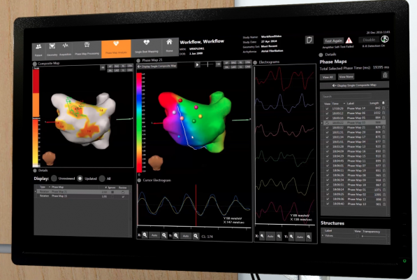 medtronic cardioinsight electromapping system, electoanatomical mapping, noninvasive ep mapping