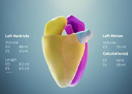 Philips, Epiq 7, Anatomically Intelligent Ultrasound, AIUS, cardiac ultrasound