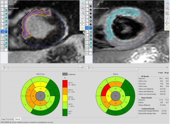 Heart MRI example. An example of a cardiac MRI exam showing perfusion defects in the heart muscle, amount of infarct and edema and a score for myocardial salvage which can help determine if revasularization will help restore heart function.