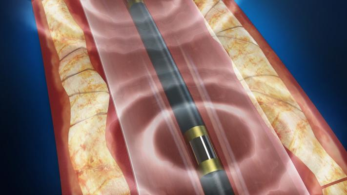 Shockwave lithoplasty system, VIVA 16, Vascular Interventioanl Advances, VIA Physicians, late-breaking endovascular clinical trial results