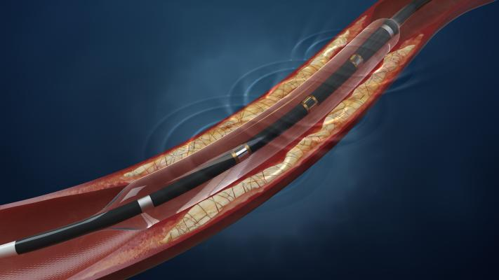 Balloon catheters, cath lab, peripheral artery disease (PAD), Lithoplasty