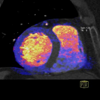 GE Healthcare, Rapiscan stress imaging agent, North America, Rapidscan Pharma Solutions Inc.