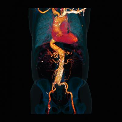 Orange County, Calif. Hospital Adopts Siemens Somatom Force CT for Cardiac Imaging