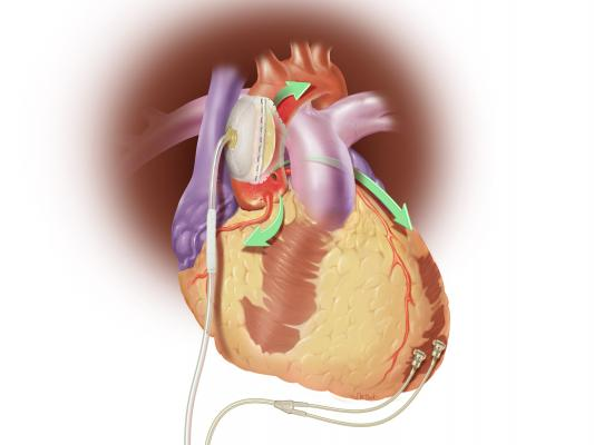 Sunshine Heart, C-Pulse, COUNTER HF, study, FDA, heart failure