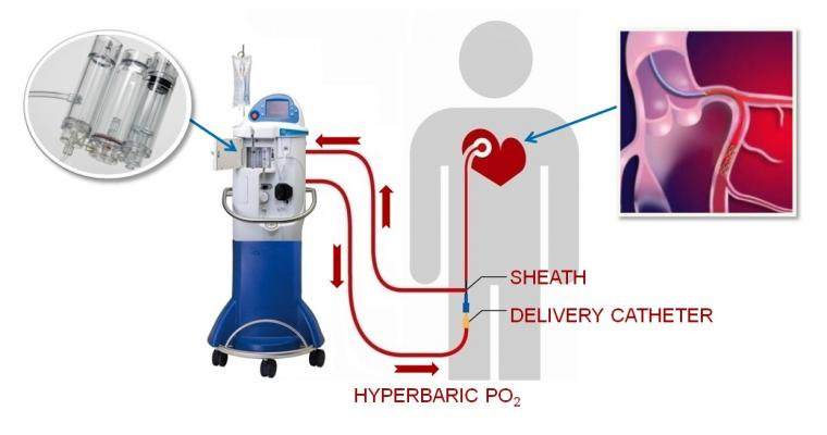 TherOx Gains FDA PMA Approval for SSO2 Therapy System