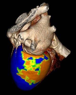 Vital Images, Toshiba, CT Myocardial Perfusion, cardiac CT, CORE 320 study