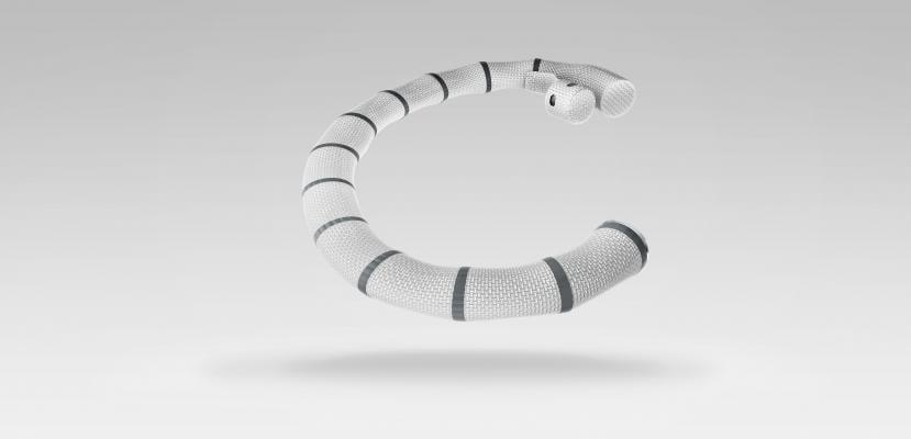 Cardioband, first tricuspid valve repair, University Hospital Zurich, Francesco Maisano