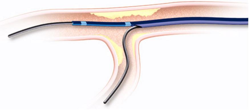 Vascular solutions, twin pass catheter, recall