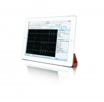 Carestream, Vue Motion universal viewer, ECG waveforms, diagnostic reading, FDA clearance