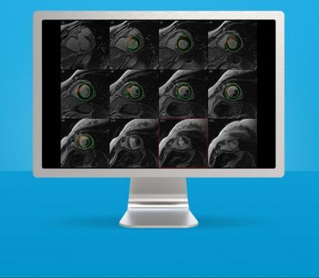 CardiacVX MR VesselIQ Xpress GE Healthcare MR Systems Advanced Visualization