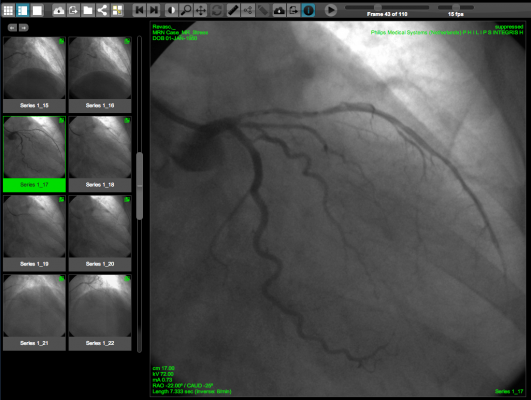 WebPAX, Heart Imaging Technologies, PACS, Cardiac PACS, Echo Imaging