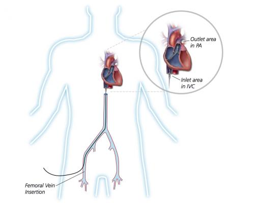 Illustration showing the venous implantation route for the Abiomed Impella RP catheter used for right heart hemodynamic support.