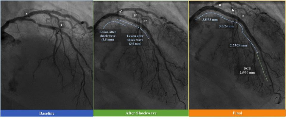 Intravascular Lithotripsy May Offer Solution for Calcified Coronary Lesions. Shockwave Medical technology uses sonic bursts to break up calcium in coronary arteries.