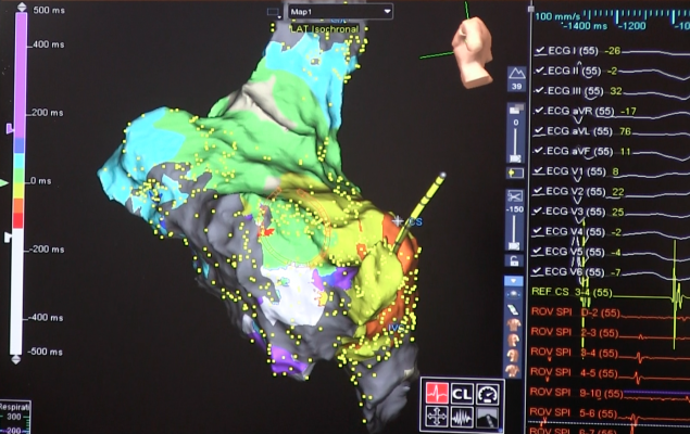 Atrial fibrillation ablation using the Abbott Ensite electro mapping system. CABANA Trial Confirms Ablation Equal To or Superior to Drug Therapy. #HRS2018