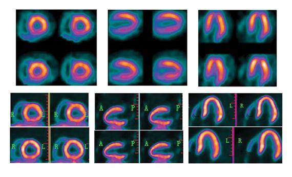 This is a BFPET PET nuclear cardiac imaging scan for myocardial perfusion, nuclear cardiology