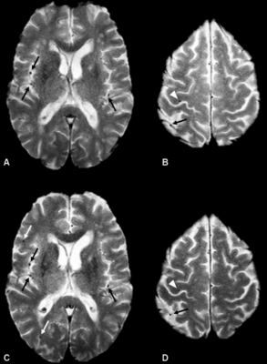 microbleeds, brain bleeds caused by TAVR