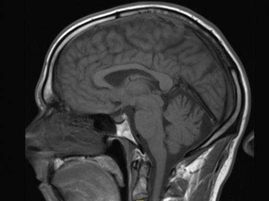 gadolinium, brain, contrast MRI, Radiology, Kanal