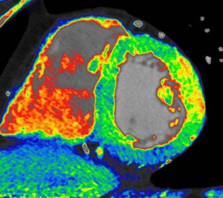 CT myocardial perfusion imaging, if validated, may enhance CT as a one-stop-shop for both anatomical and functional imaging. Shown is TeraRecon's CardiacTVA colormap CT cardiac perfusion imaging analysis showing an ischemic area (in blue) in the left ventricle.