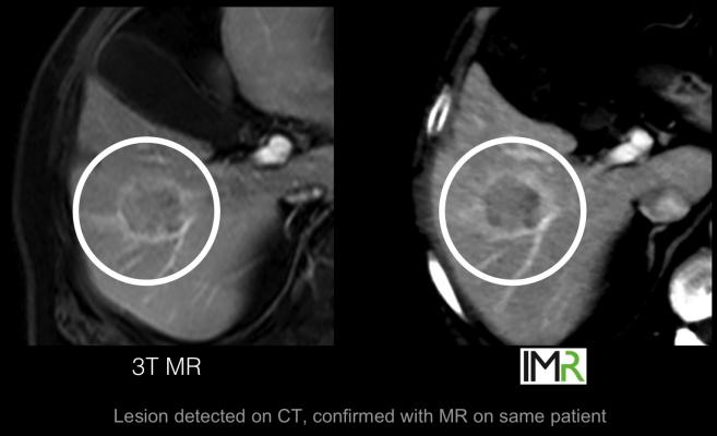 Philips' has developed the IMR CT spectral imaging software, which may offer detailed soft tissue imaging comparable to MRI, as shown here in a comparison of a imaging of the same soft tissue lesion.