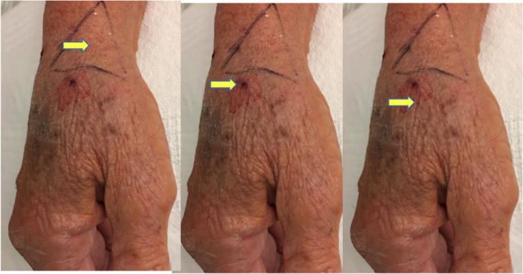 The three sites most often used for distal radial artery access are the (1) anatomic snuffbox above the scaphoid (left), (2) adjacent to the snuffbox at the trapezium bone (center), and (3) the first intermetacarpal space (right). The author's preference is either of the first two options, although good outcomes have been reported with use of the intermetacarpal space.