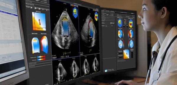 Bracco, Lumason, first U.S. echocardiography procedure, Morristown