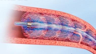 Endovascular Pulmonary Embolism Therapy Shows Promise Over Medical ...