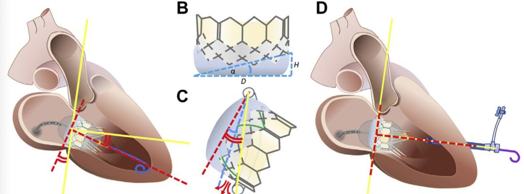 """Explaining the Emory TMVR angle. Discordance between mitral annular centerline (yellow lines) and valve orientation imposed by guidewire position within the LV apex (red dashed lines). (B) Valve intrinsic angle (α) is determined by external skirt height. (C) When annular-apical """"Emory"""" angle (red curves) exceeds α (blue curve), annular skirt apposition is not possible, causing PVL (red arrows). (D) The valve is oriented perpendicular to the annual plane using an exteriorized apical guidewire."""