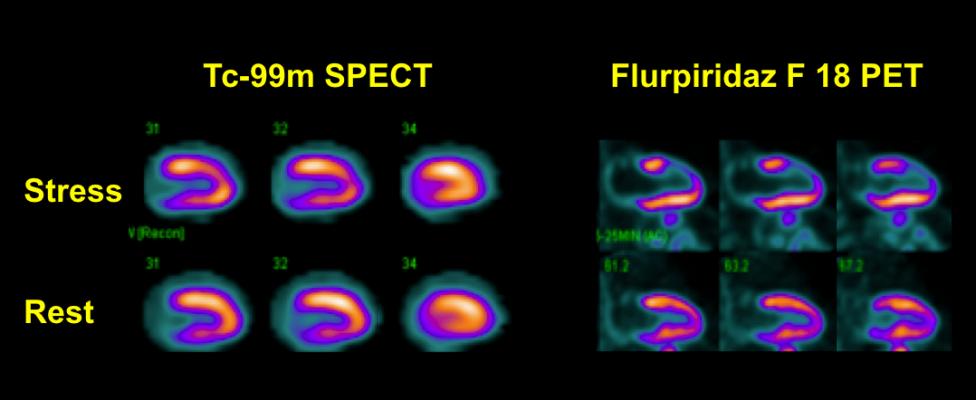 Flurpiridaz F-18 May Expand PET for Myocardial Perfusion