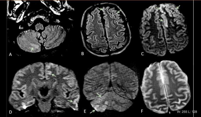 This is Figure 2 from the article in Radiology: Acute encephalopathy. A 60 year-old-man without history of seizures presenting with convulsion. (A-B) Multifocal areas of FLAIR hyperintensity in the right cerebellum (arrows in A), left anterior cingular cortex and superior frontal gyrus (arrows in B). (C-D) Restricted diffusion in the left anterior cingulate cortex, superior frontal and middle temporal gyrus (arrows in D) and right cerebellum (arrows in E), consistent with cerebellar diaschisis. #COVID19