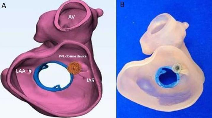 Figure 2: A patient-specific 3-D design (A) and model (B) of a medial paravalvular leak (PVL) in a patient with a surgically implanted mechanical mitral valve. Interventional imagers created and interpret these images as part of the heart team.
