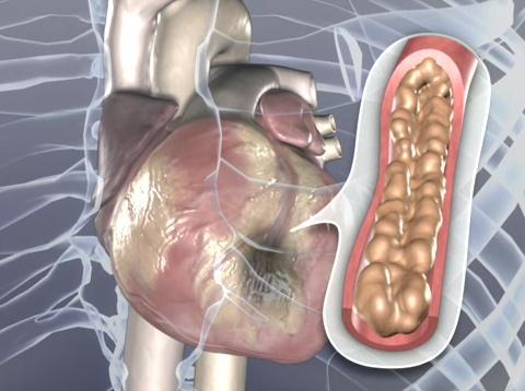 Bendavia, heart attack, scarring, angioplasty, ACC, study