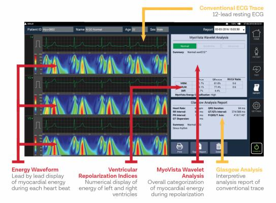 HeartSciences has been developing a new type of ECG system called Wavelet ECG that may offer a new way of looking at the heart. The MyoVista system uses continuous wavelet transform (CWT) signal processing to provide new frequency and energy information to detect cardiac relaxation abnormalities associated with left ventricular diastolic dysfunction commonly associated with hypertension, diabetes, valvular disease, ischemia, and reduced systolic function. Artificial intelligence is used to read the exam.