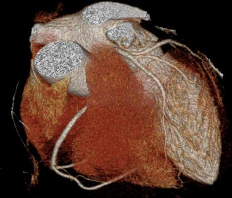 heart failure, BAT, baroreflex activation therapy, William Abraham, CVRx