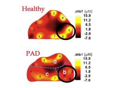 Hielscher, Columbia, PAD, OCT, diabetes, optical tomographic imaging, peripheral
