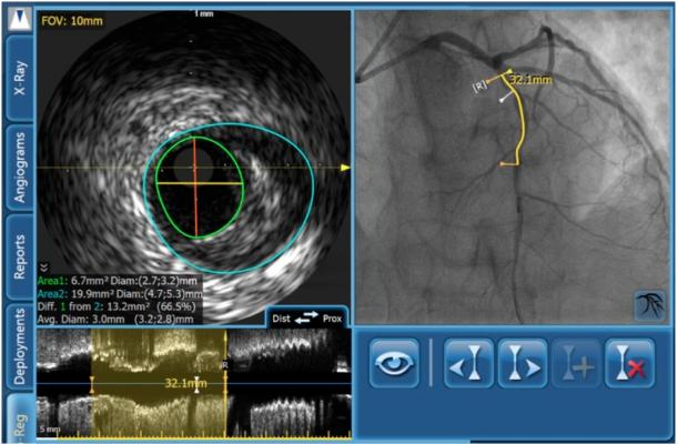Absorb, imaging bioresorbable stent, IVUS, Volcano, coronary lesion