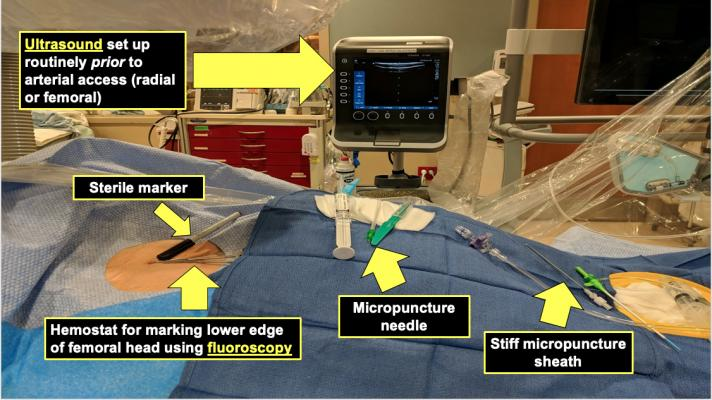 At Mayo, they have a small, tableside-mounted ultrasound console in the cath labs that is used for both radial and femoral vascular access. Table set up with the patient includes a sterile marker, a hemostat for marking the lower edge of the femoral head using fluoroscopy, a micropunture needle, and a still micropunture sheath.