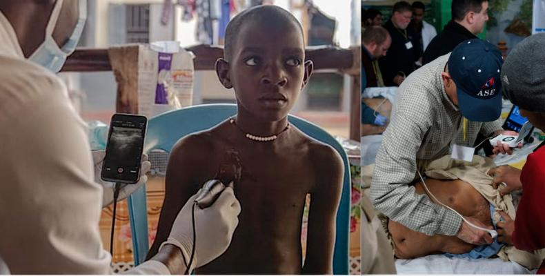 Two examples of hand-held, point-of-care-ultrasound (POCUS) being used to get immediate medical imaging information from patients in underserved areas. Left, a Butterfly Network system using an probe and an app turns a smartphone into an ultrasound system to image a patient at a remote African clinic. Right, a GE vScan being used to image patients in a ruralcommunity inIndian as part of an American Society of Echocardiography (ASE) outreach program.