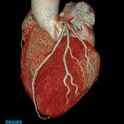 Philips iCT cardiac CTA