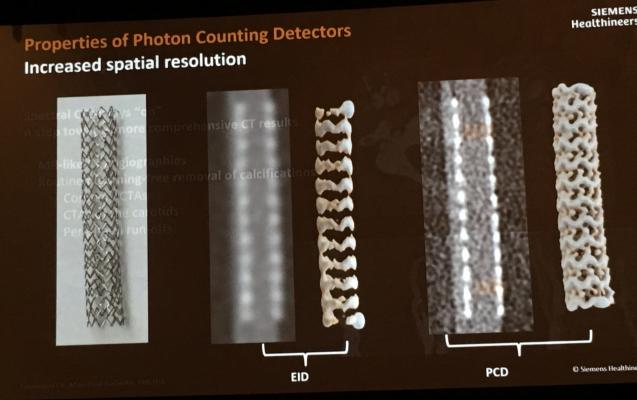Example of how the photon-counting CT detector being developed by Siemens can improve the resolution of a coronary stent. #SCCT19