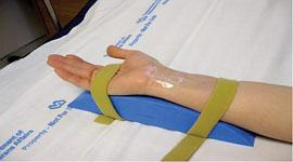 Use of a wrist support for radial access vessel entry prep.