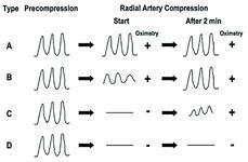 Barbeau test waveformes used in radial access procedures.