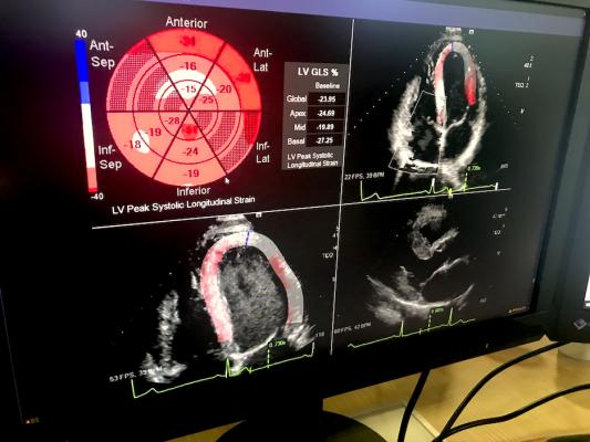 An example at HIMSS of deeper third-party software integration in enterprise imaging platforms wasSiemens Healthcare showing a new, deep integration with echocardiography strain imaging analysis provider Epsilon Imaging. The integration eliminates the need for a separate login and the Epsilon software is now just a tool option available in the syngo system and it carries over data and images directly into the echo report.