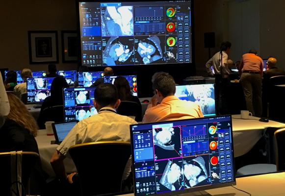 The hands-on workshop for transcatheter aortic valve replacement (TAVR) CT image planning at the 2019 Society Of Cardiovascular Computed Tomography (SCCT) meeting. This year SCCT hosted its first workshop for transcatheter mitral valve replacement (TMVR) CT planning. #SCCT19