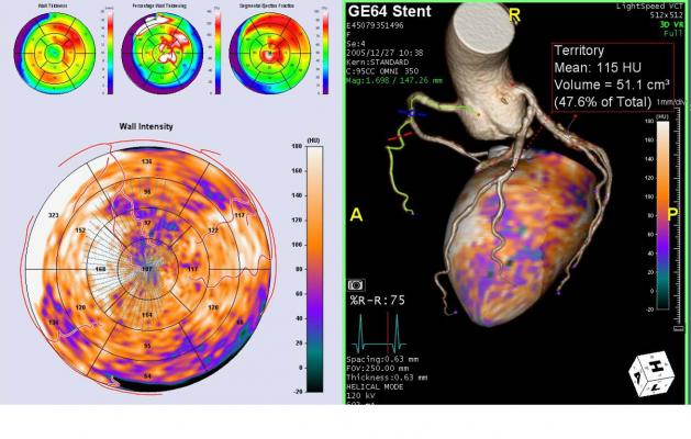 TeraRecon's Lesion-Specific Analysis software can show areas of ischemia in the myocardium with a coronary vessel overlay as both a 3-D reconstruction of the heart or on bulls eye views.