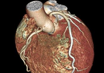 Top stories of 2012 in cardiology