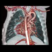 CT angiography, comparing CT systems, what to look for in CT systems
