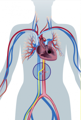 An illustration showing the transcaval access cross over point between the venous and arterial systems.
