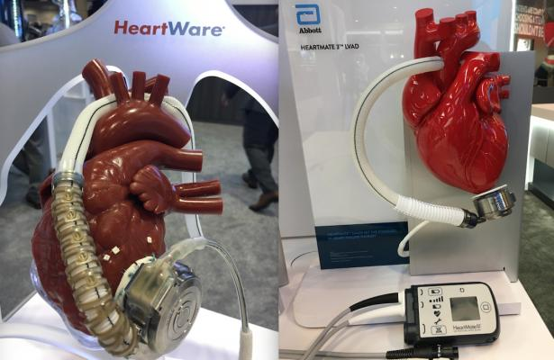 The Medtronic Heartware and Abbott Heartmate 3 LVADs and others currently cleared by the FDA might be easier to use in Medicare advanced heart failure patients under new guidelines proposed by CMS. Photo by Dave Fornell
