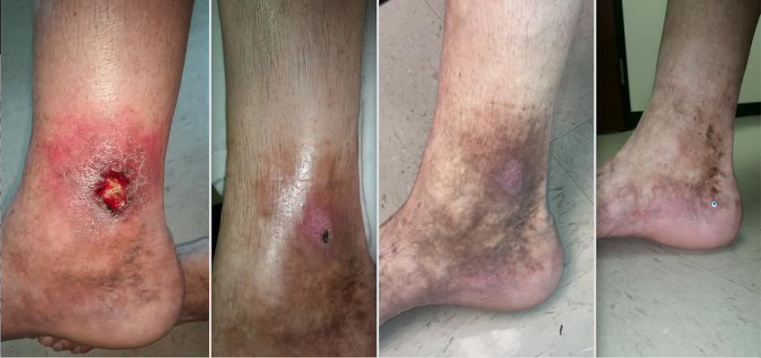 A patient case study showing a venous ulcer formation 18 months following thermal ablation varicose vein treatment in the GSV. The patient was treated with Varithena polidocanol endovenous microfoam chemical-ablation. Images show baseline prior to treatment (right), followed by one, four and six weeks after treatment. The treatment is also called sclerotherapy.