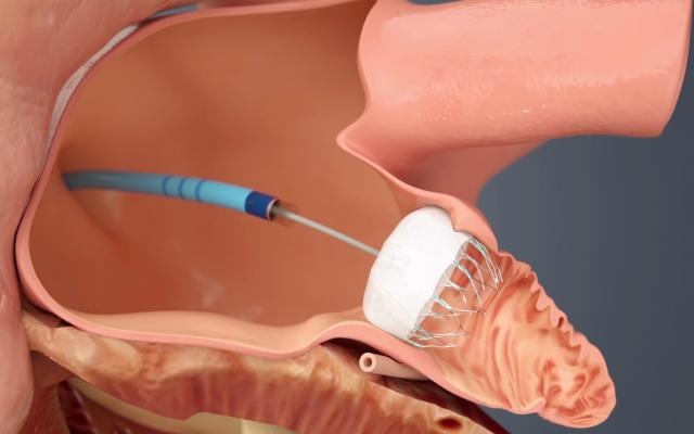FDA Clears Watchman Device as an Alternative to Anticoagulation ...